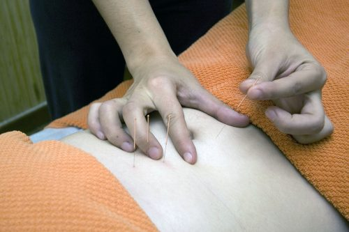 guidelines-in-choosing-the-right-acupuncturist-3
